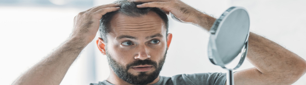 Hair Scene Blog - Male Hair Loss