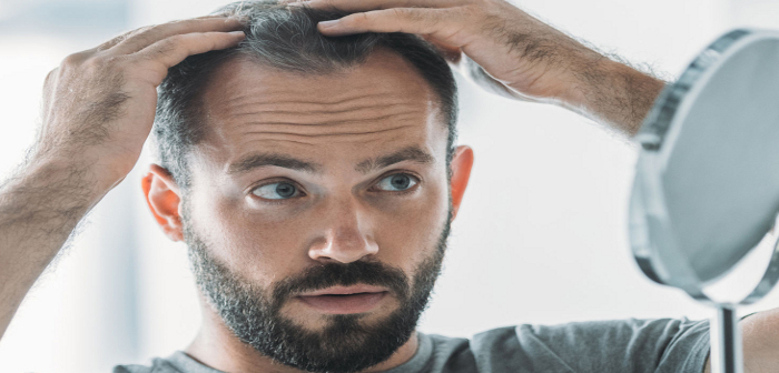 Hair Scene Blog - Male Hair Loss